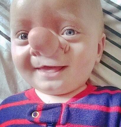新生儿眼睛结构图